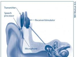 Diagram of a cochlear implant. Credit: National Institutes of Health